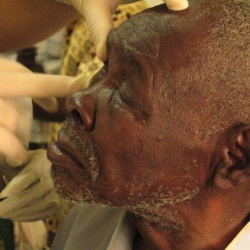 """""""Todos los sanitarios tenemos la inquietud de ayudar a los demás, y si sabes que en el Chad lo tienen bastante más difícil, el impulso es mayor"""""""